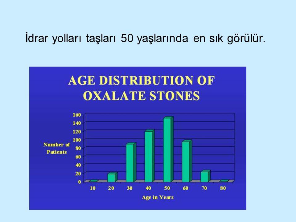 İdrar yolları taşları 50 yaşlarında en sık görülür.