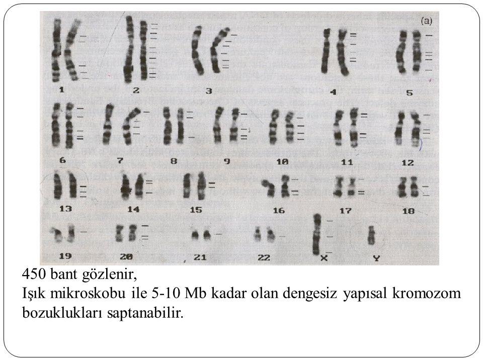 450 bant gözlenir, Işık mikroskobu ile 5-10 Mb kadar olan dengesiz yapısal kromozom bozuklukları saptanabilir.