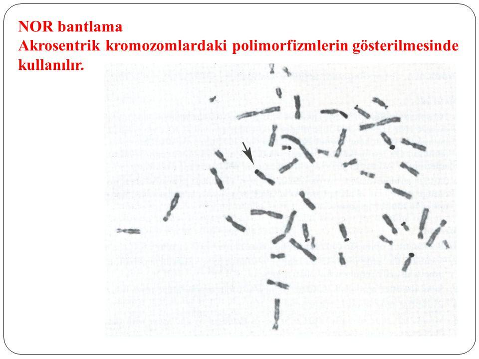 NOR bantlama Akrosentrik kromozomlardaki polimorfizmlerin gösterilmesinde kullanılır.