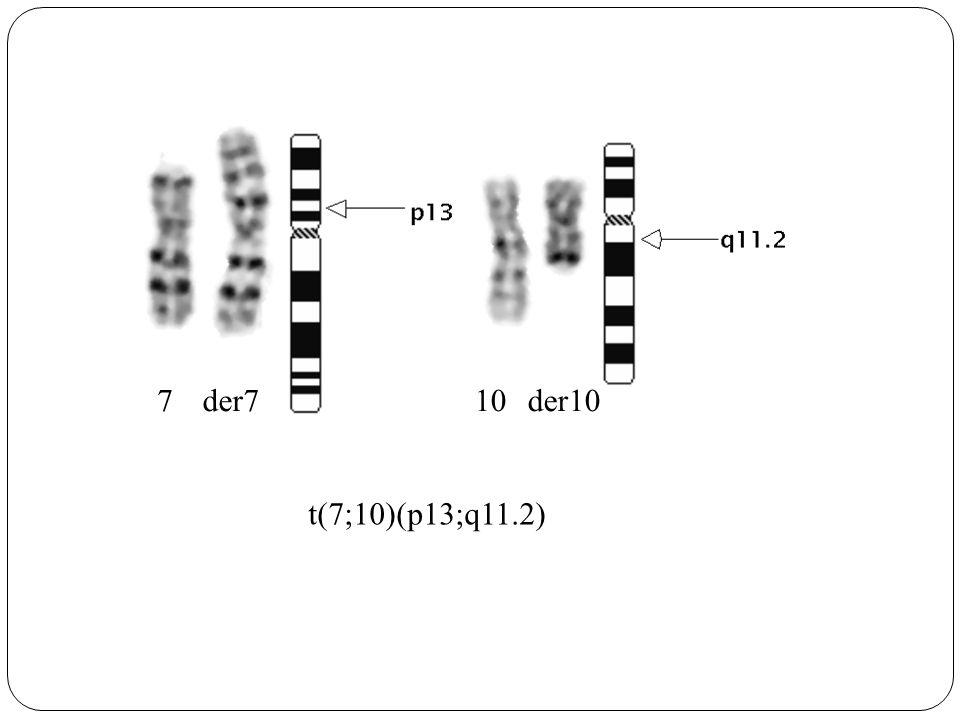 710 t(7;10)(p13;q11.2) der7der10