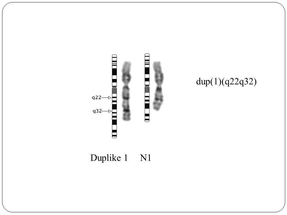 Duplike 1N1 dup(1)(q22q32)