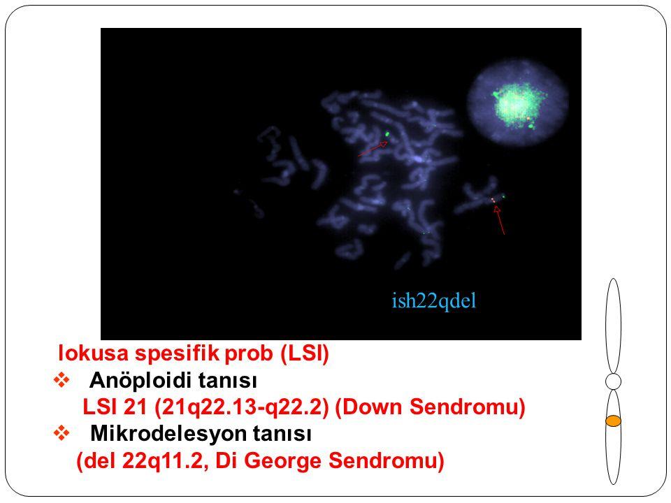 lokusa spesifik prob (LSI)  Anöploidi tanısı LSI 21 (21q22.13-q22.2) (Down Sendromu)  Mikrodelesyon tanısı (del 22q11.2, Di George Sendromu) ish22qd
