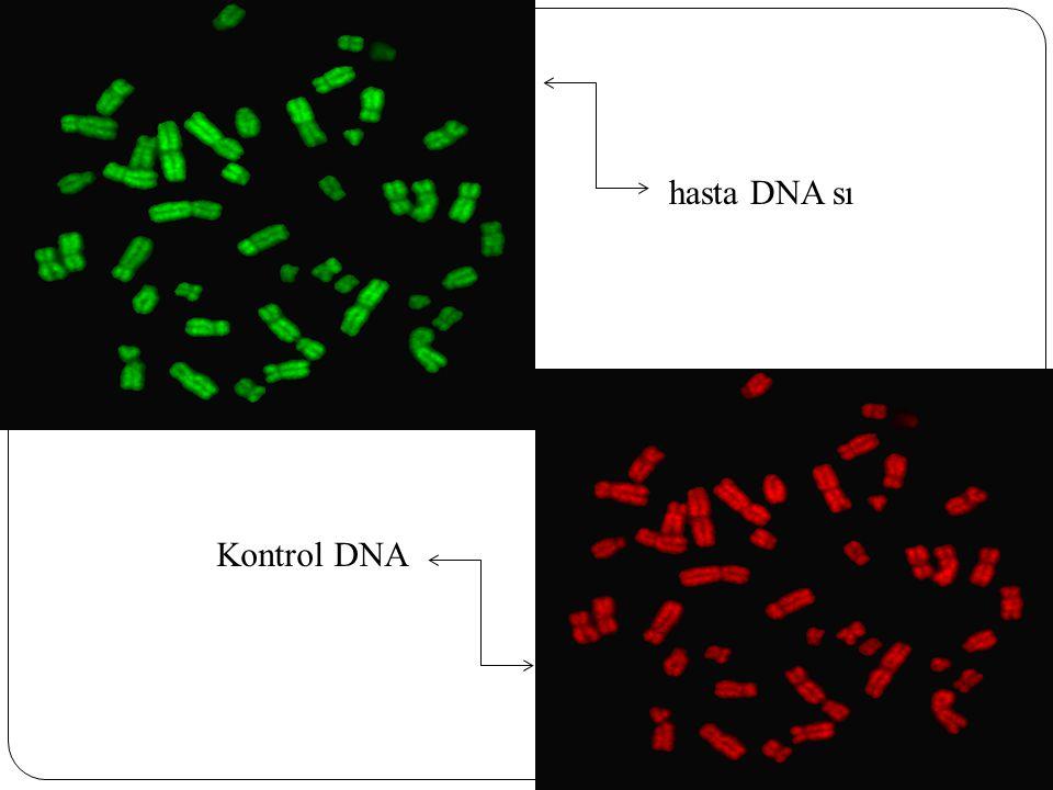 hasta DNA sı Kontrol DNA