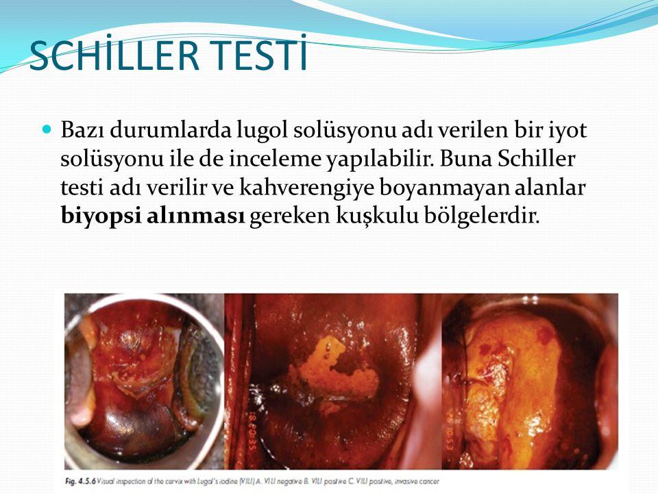 SCHİLLER TESTİ Bazı durumlarda lugol solüsyonu adı verilen bir iyot solüsyonu ile de inceleme yapılabilir. Buna Schiller testi adı verilir ve kahveren