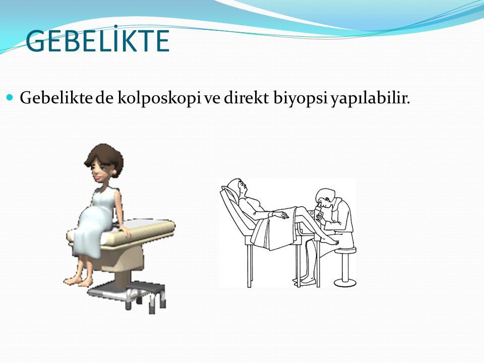 GEBELİKTE Gebelikte de kolposkopi ve direkt biyopsi yapılabilir.