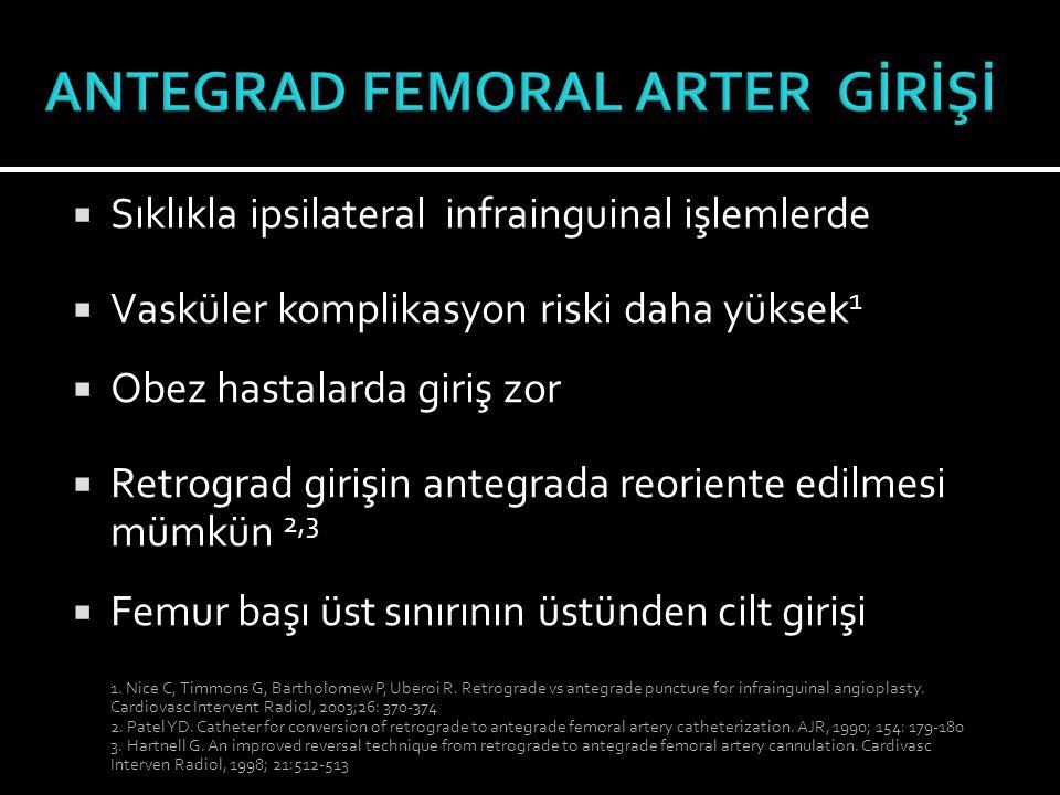  Sıklıkla ipsilateral infrainguinal işlemlerde  Vasküler komplikasyon riski daha yüksek 1  Obez hastalarda giriş zor  Retrograd girişin antegrada