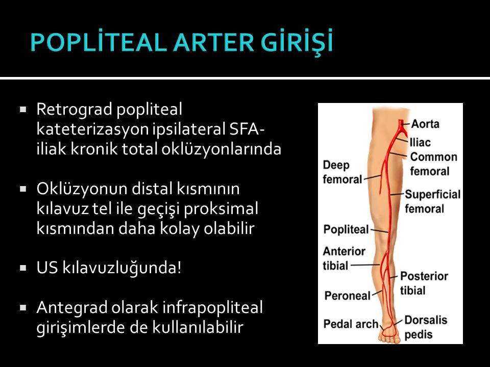  Retrograd popliteal kateterizasyon ipsilateral SFA- iliak kronik total oklüzyonlarında  Oklüzyonun distal kısmının kılavuz tel ile geçişi proksimal