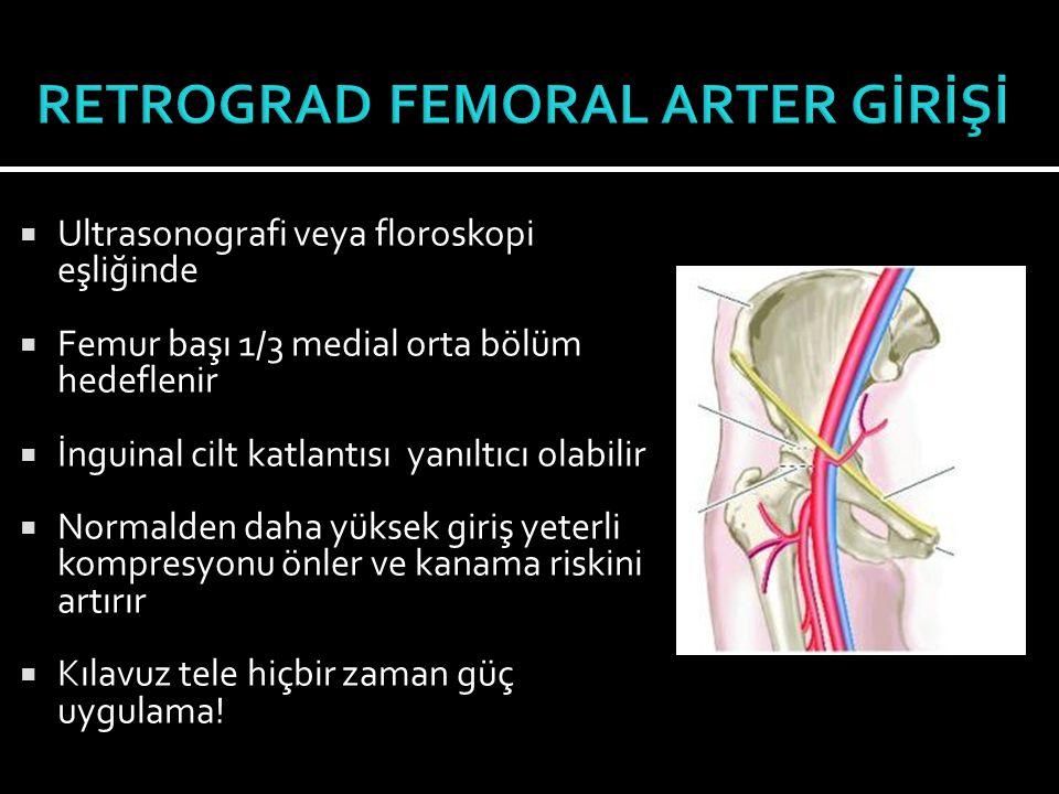  Sıklıkla ipsilateral infrainguinal işlemlerde  Vasküler komplikasyon riski daha yüksek 1  Obez hastalarda giriş zor  Retrograd girişin antegrada reoriente edilmesi mümkün 2,3  Femur başı üst sınırının üstünden cilt girişi 1.