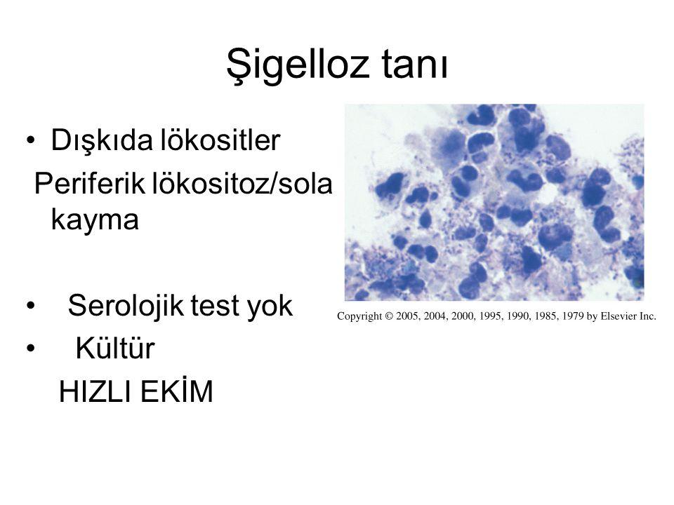 Şigelloz tanı Dışkıda lökositler Periferik lökositoz/sola kayma Serolojik test yok Kültür HIZLI EKİM