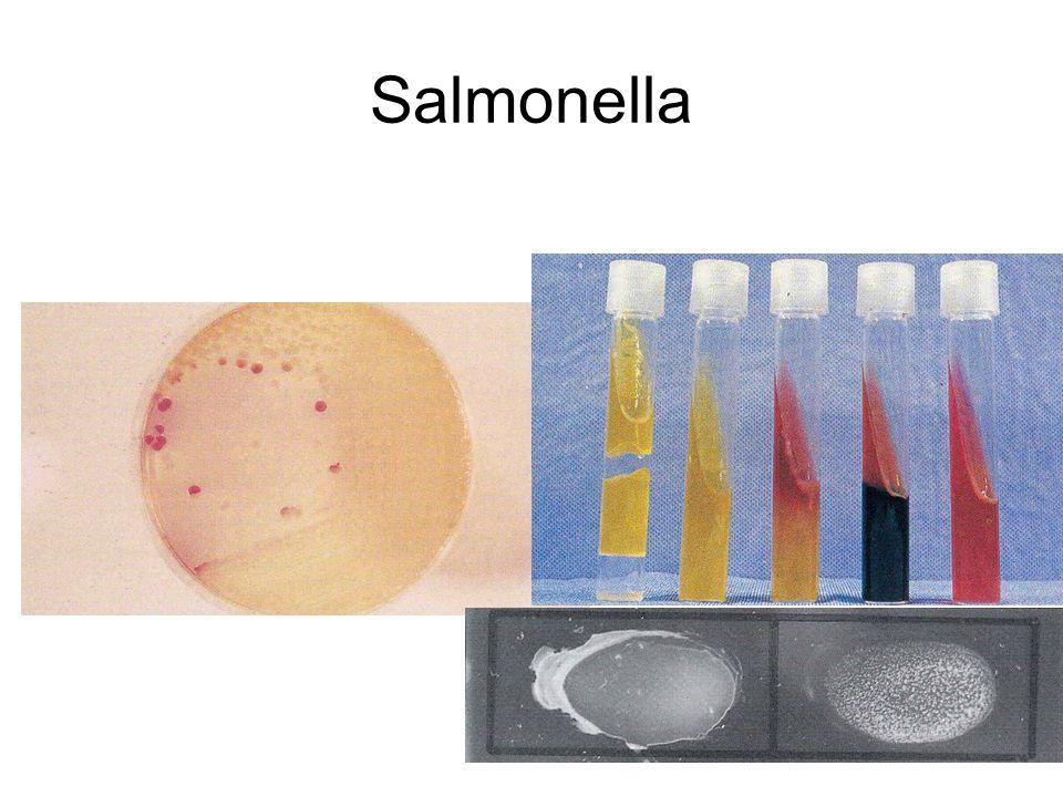 Patogenez S.typhi...Hücre içi patojen (Vi ag) Salmonella...