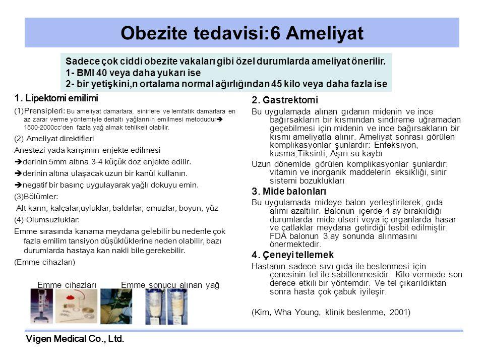 Vigen Medical Co., Ltd. Obezite tedavisi:6 Ameliyat 1. Lipektomi emilimi (1)Prensipleri: Bu ameliyat damarlara, sinirlere ve lemfatik damarlara en az