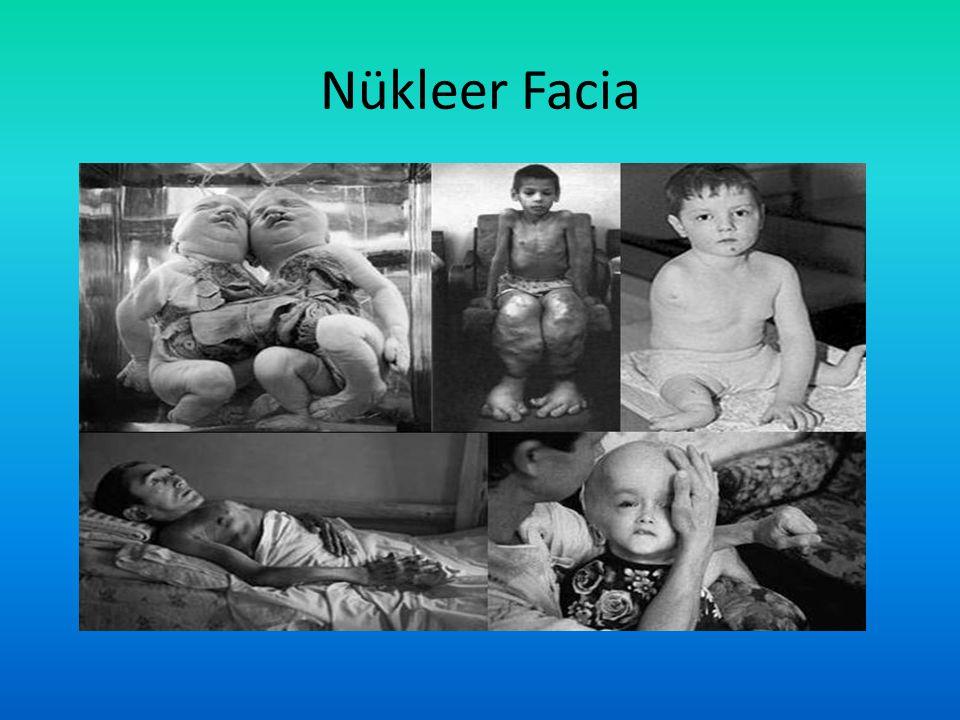 Nükleer Facia
