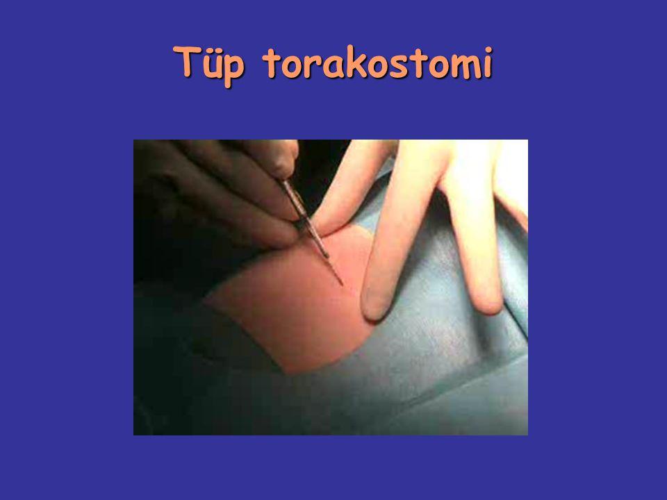Tüp torakostomi