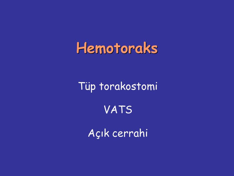 Hemotoraks Tüp torakostomi VATS Açık cerrahi