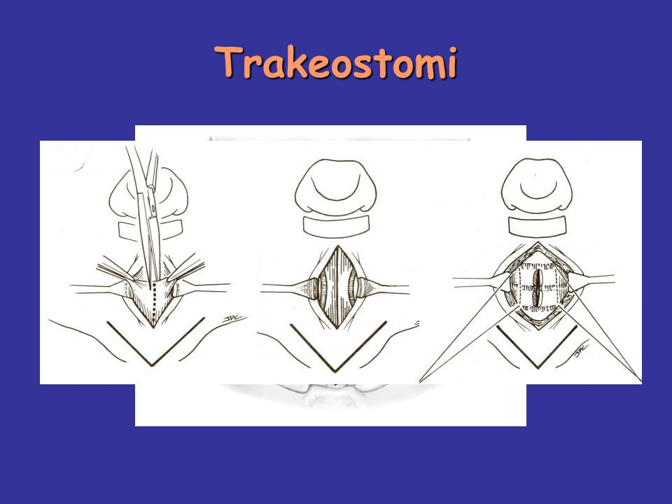 Trakeostomi