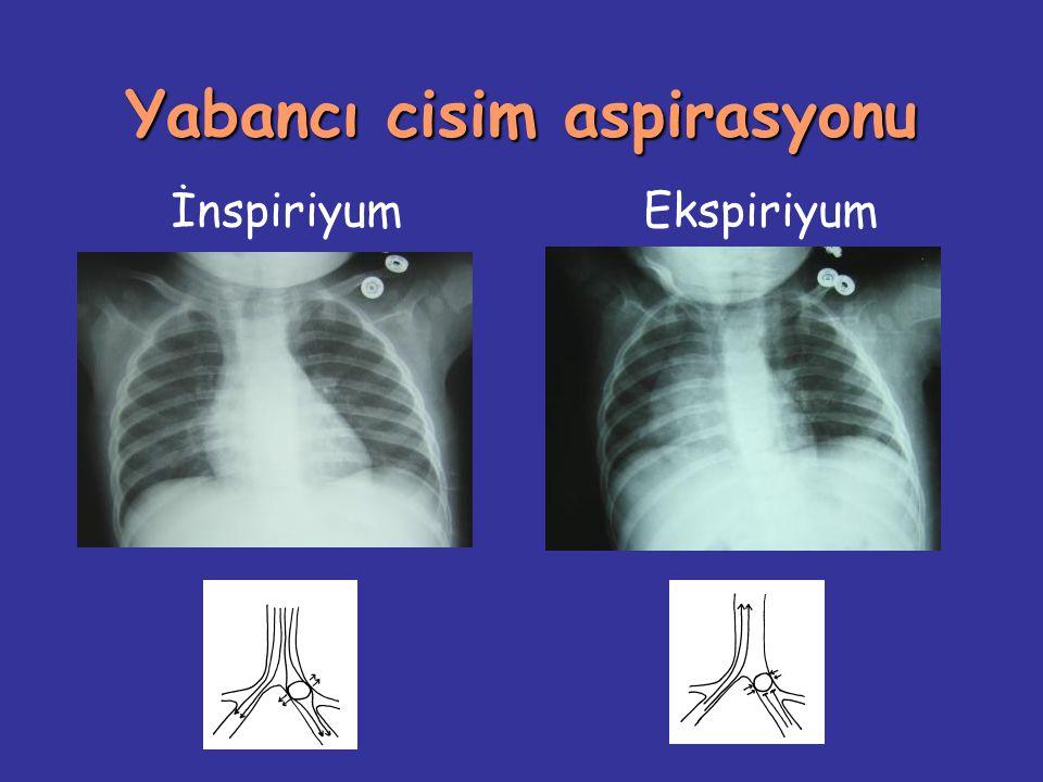 Parapnömonik efüzyon Tedavi Konservatif Tüp torakostomi Fibrinolitik tedavi Torakoskopi Torakotomi