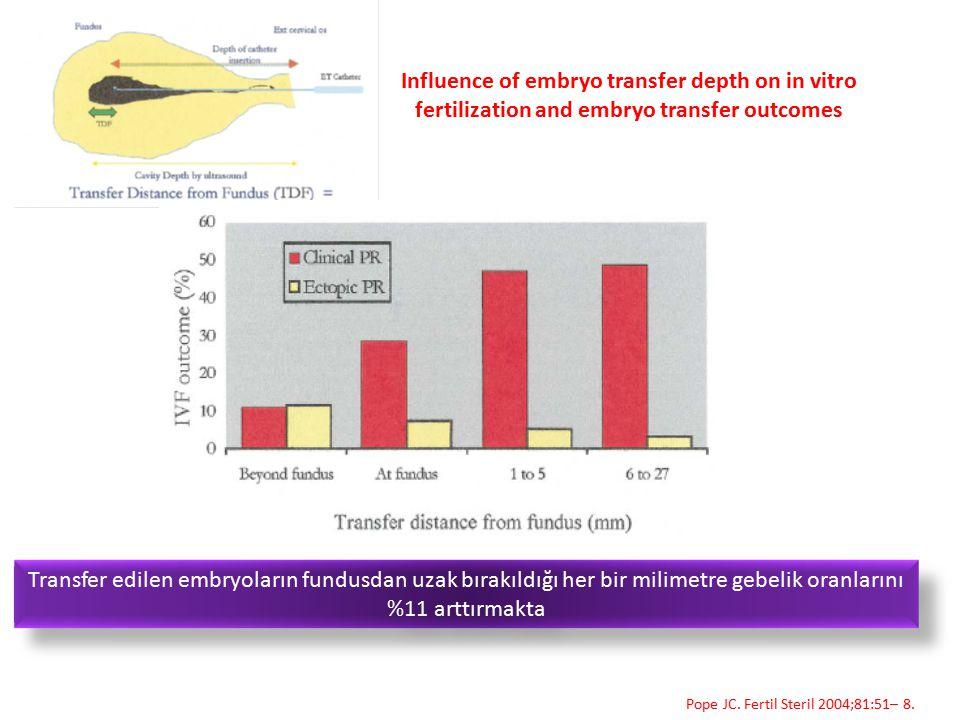 Influence of embryo transfer depth on in vitro fertilization and embryo transfer outcomes Transfer edilen embryoların fundusdan uzak bırakıldığı her b