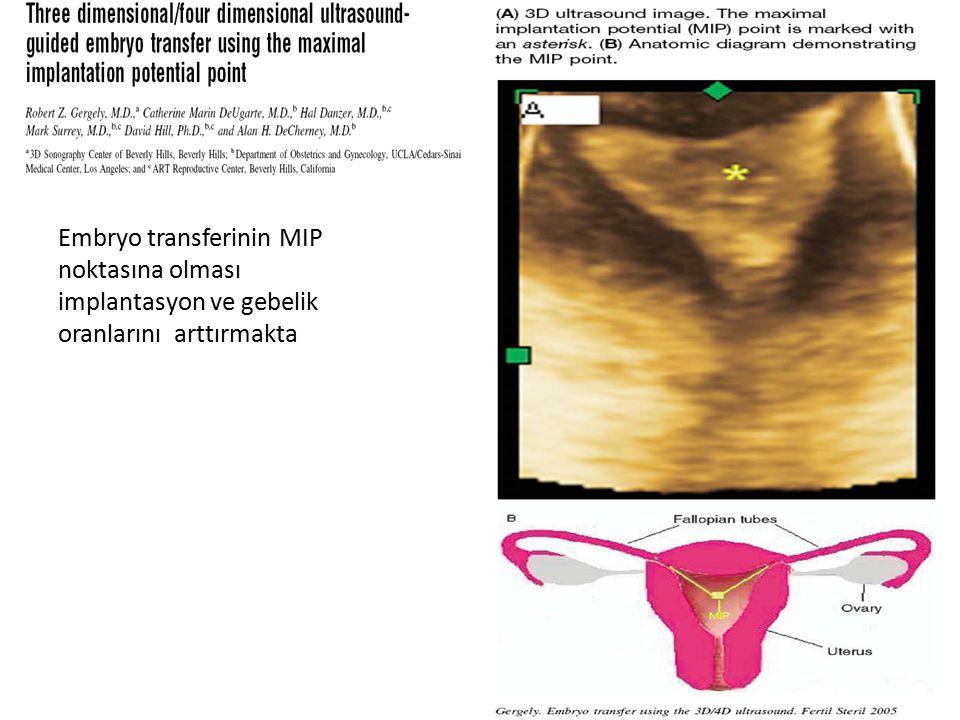 Embryo transferinin MIP noktasına olması implantasyon ve gebelik oranlarını arttırmakta