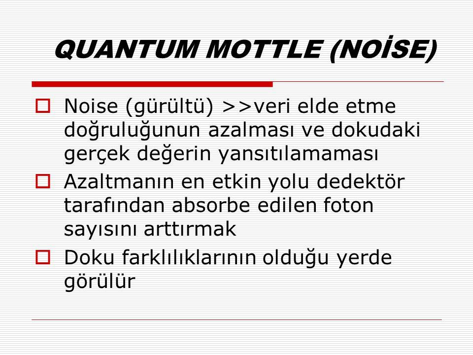 QUANTUM MOTTLE (NOİSE)  Noise (gürültü) >>veri elde etme doğruluğunun azalması ve dokudaki gerçek değerin yansıtılamaması  Azaltmanın en etkin yolu dedektör tarafından absorbe edilen foton sayısını arttırmak  Doku farklılıklarının olduğu yerde görülür
