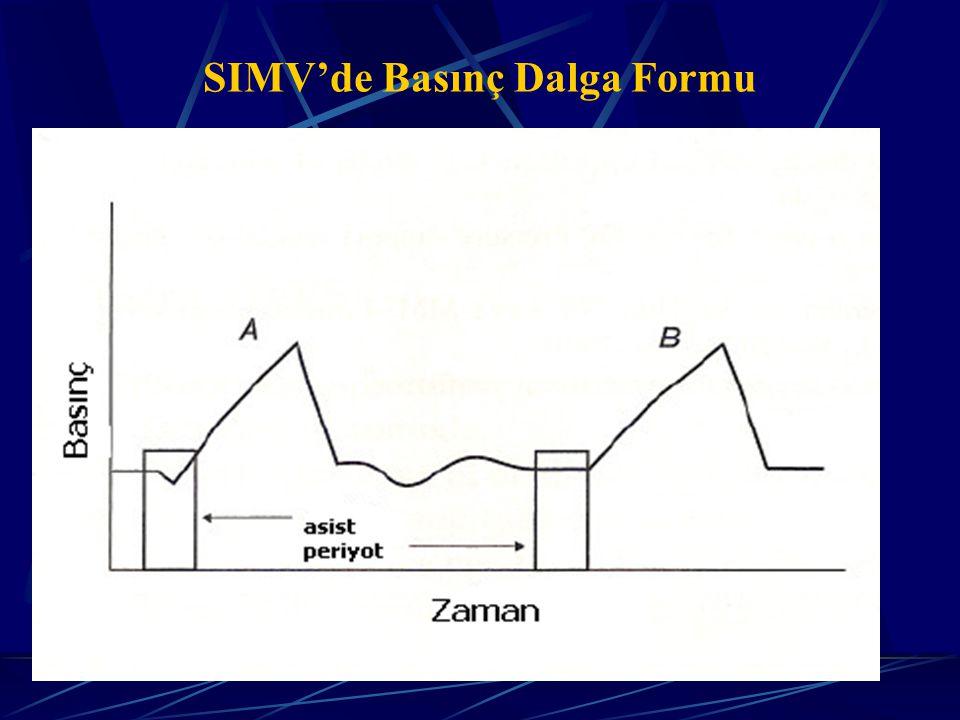 SIMV'de Basınç Dalga Formu