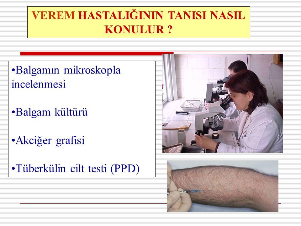 14 VEREM HASTALIĞININ TANISI NASIL KONULUR ? Balgamın mikroskopla incelenmesi Balgam kültürü Akciğer grafisi Tüberkülin cilt testi (PPD)
