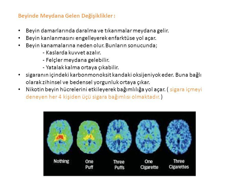 Beyinde Meydana Gelen Değişiklikler : Beyin damarlarında daralma ve tıkanmalar meydana gelir. Beyin kanlanmasını engelleyerek enfarktüse yol açar. Bey