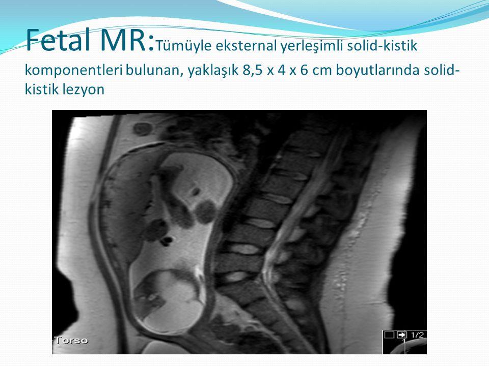 Fetal MR: Tümüyle eksternal yerleşimli solid-kistik komponentleri bulunan, yaklaşık 8,5 x 4 x 6 cm boyutlarında solid- kistik lezyon