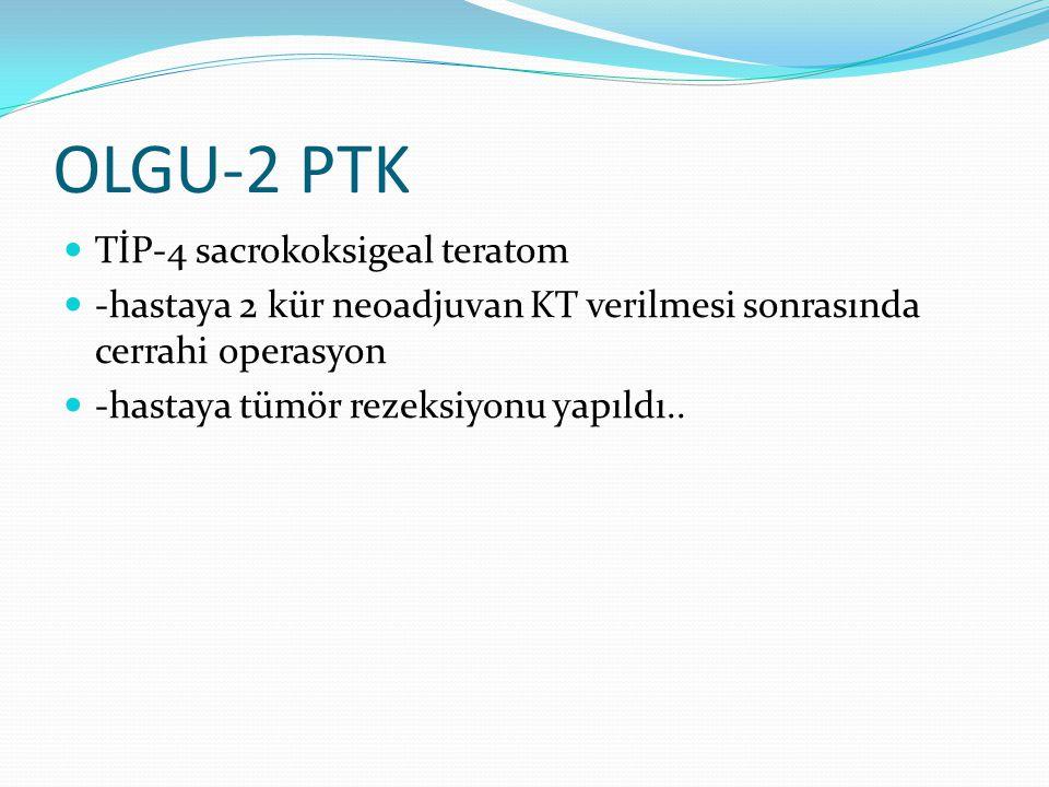 OLGU-2 PTK TİP-4 sacrokoksigeal teratom -hastaya 2 kür neoadjuvan KT verilmesi sonrasında cerrahi operasyon -hastaya tümör rezeksiyonu yapıldı..