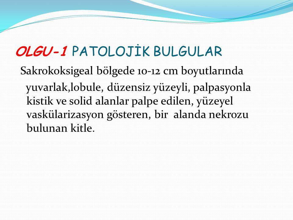 OLGU-1 PATOLOJİK BULGULAR Sakrokoksigeal bölgede 10-12 cm boyutlarında yuvarlak,lobule, düzensiz yüzeyli, palpasyonla kistik ve solid alanlar palpe ed