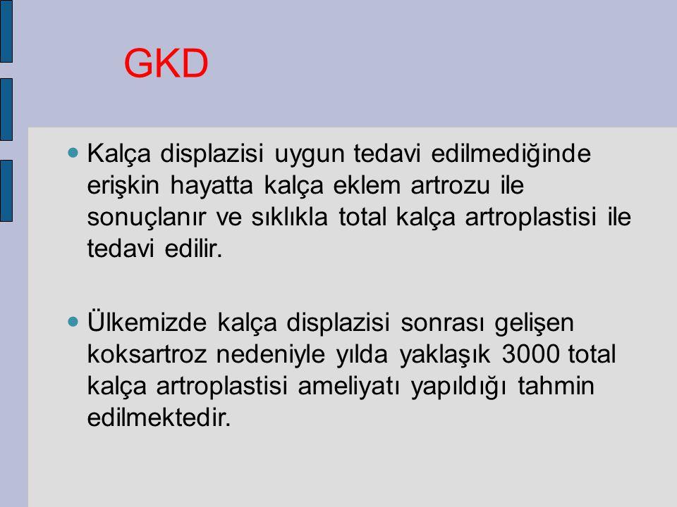 GKD Kalça displazisi uygun tedavi edilmediğinde erişkin hayatta kalça eklem artrozu ile sonuçlanır ve sıklıkla total kalça artroplastisi ile tedavi edilir.