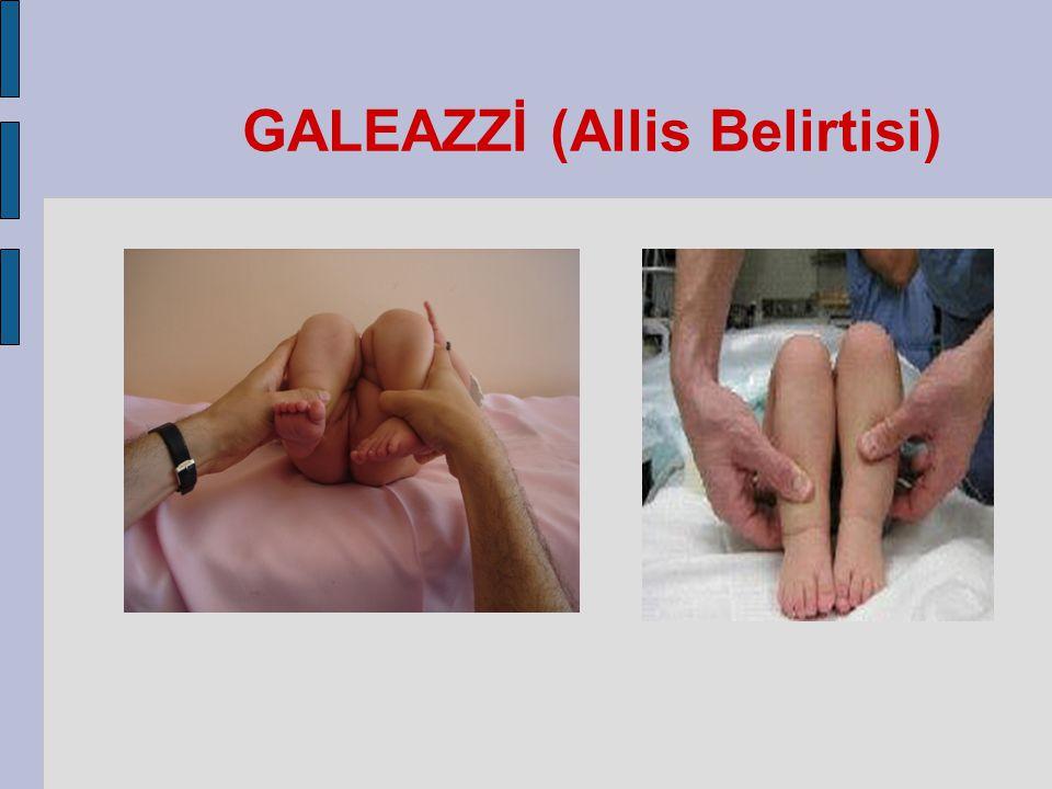 GALEAZZİ (Allis Belirtisi)