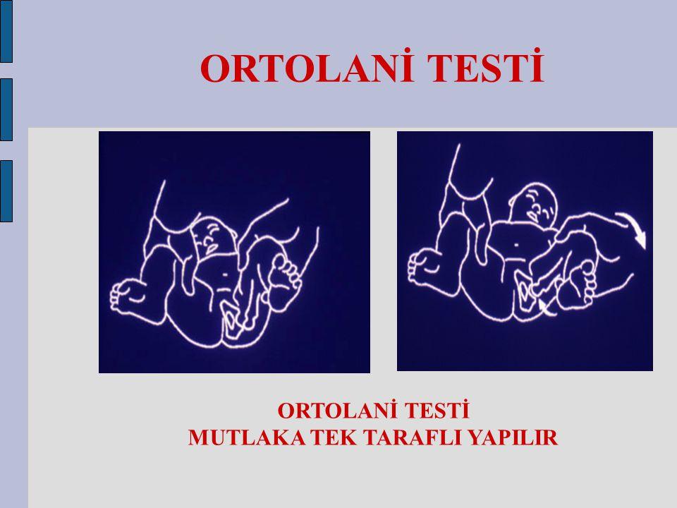 ORTOLANİ TESTİ MUTLAKA TEK TARAFLI YAPILIR ORTOLANİ TESTİ