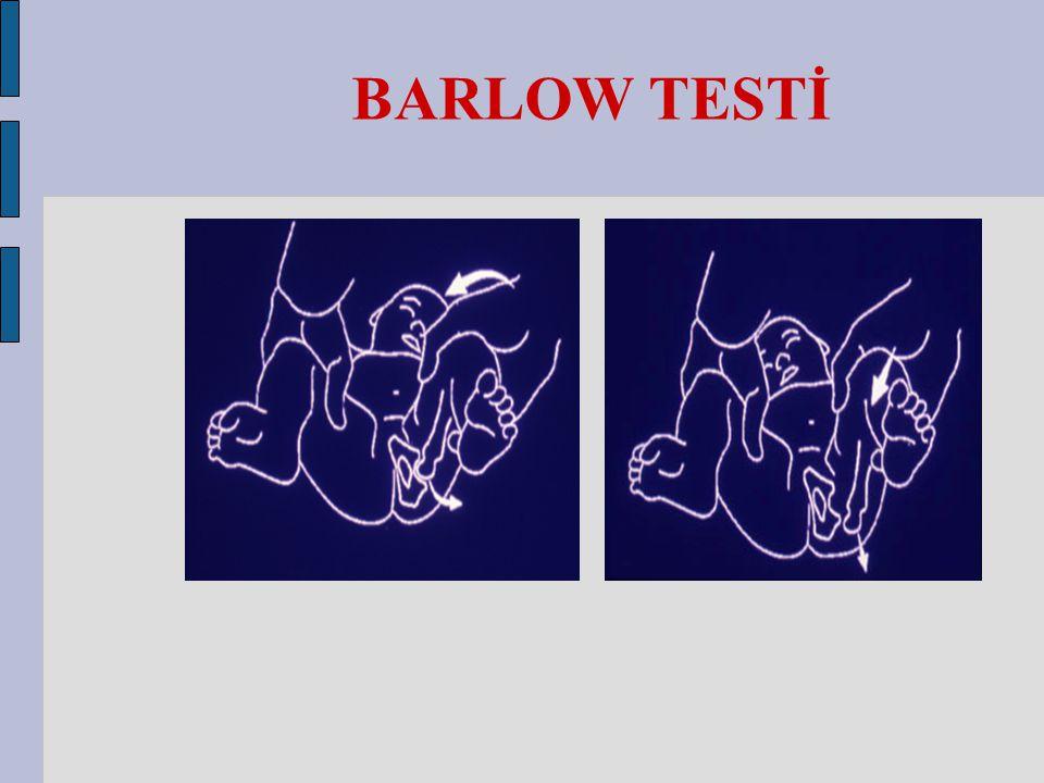 BARLOW TESTİ