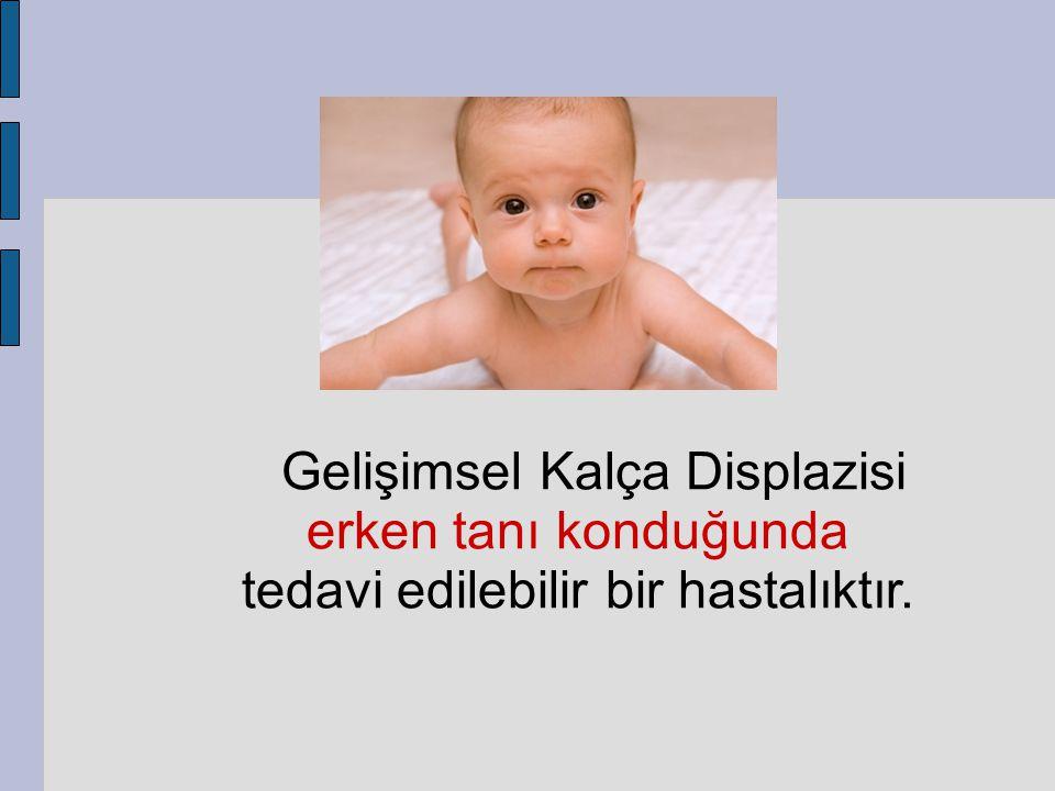 Gelişimsel Kalça Displazisi erken tanı konduğunda tedavi edilebilir bir hastalıktır.