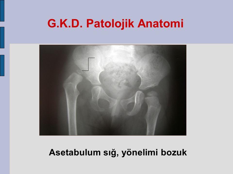 G.K.D. Patolojik Anatomi Asetabulum sığ, yönelimi bozuk