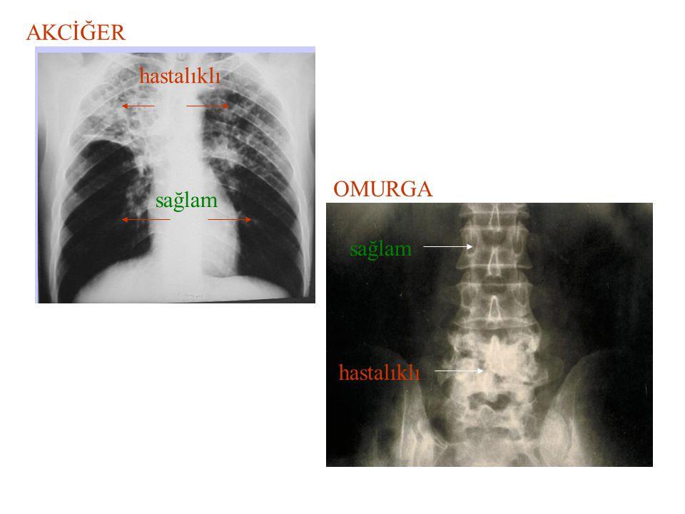 AKCİĞER OMURGA hastalıklı sağlam hastalıklı