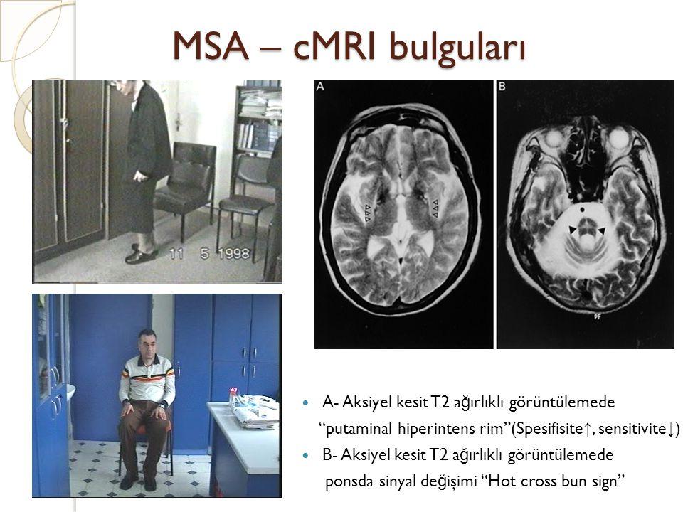 "MSA – cMRI bulguları A- Aksiyel kesit T2 a ğ ırlıklı görüntülemede ""putaminal hiperintens rim""(Spesifisite ↑, sensitivite ↓ ) B- Aksiyel kesit T2 a ğ"