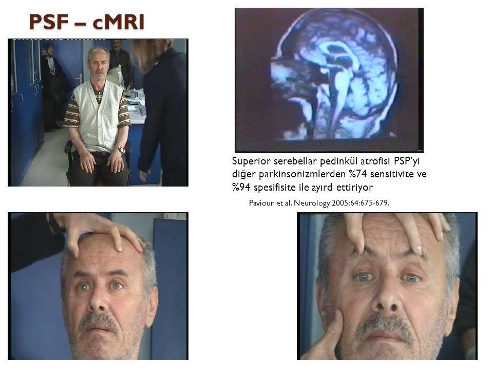 PSF – cMRI Superior serebellar pedinkül atrofisi PSP'yi di ğ er parkinsonizmlerden %74 sensitivite ve %94 spesifisite ile ayırd ettiriyor Paviour et a