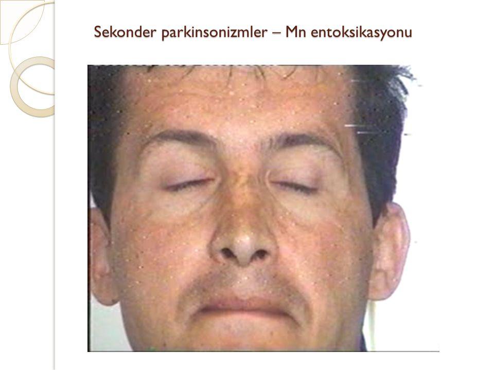 Sekonder parkinsonizmler – Mn entoksikasyonu