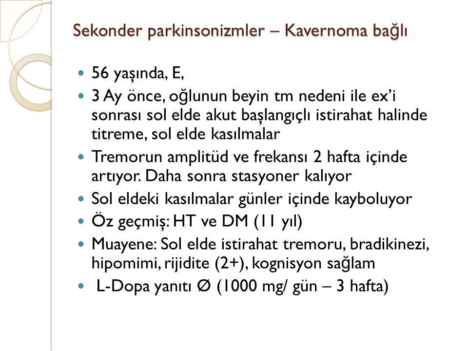 Sekonder parkinsonizmler – Kavernoma ba ğ lı 56 yaşında, E, 3 Ay önce, o ğ lunun beyin tm nedeni ile ex'i sonrası sol elde akut başlangıçlı istirahat