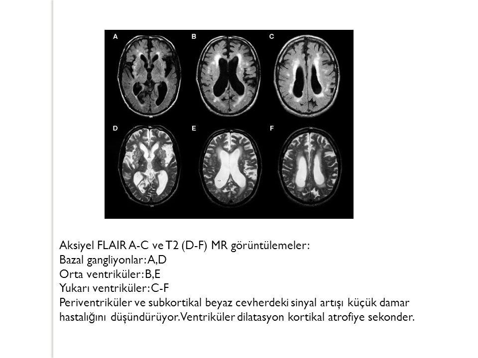 Aksiyel FLAIR A-C ve T2 (D-F) MR görüntülemeler: Bazal gangliyonlar: A,D Orta ventriküler: B,E Yukarı ventriküler: C-F Periventriküler ve subkortikal