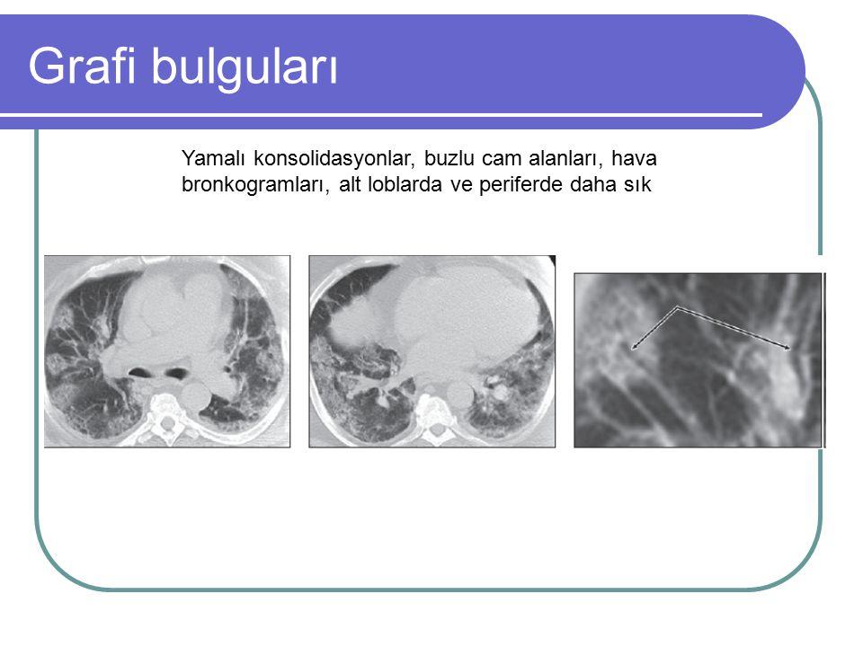 Grafi bulguları Yamalı konsolidasyonlar, buzlu cam alanları, hava bronkogramları, alt loblarda ve periferde daha sık