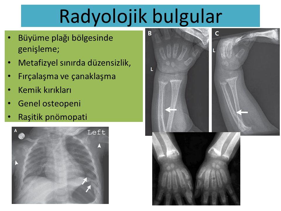 Klinik/radyolojik/patolojik korelasyon El bileklerinde /Metafizer genişleme ve düzensizlik Ön fontanelde genişleme ve frontol bossing  Büyüme plağında hücresel balonlaşma ve mineralize olmamış osteoid doku birikimi  