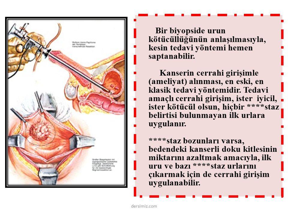 Bir biyopside urun kötücüllüğünün anlaşılmasıyla, kesin tedavi yöntemi hemen saptanabilir.
