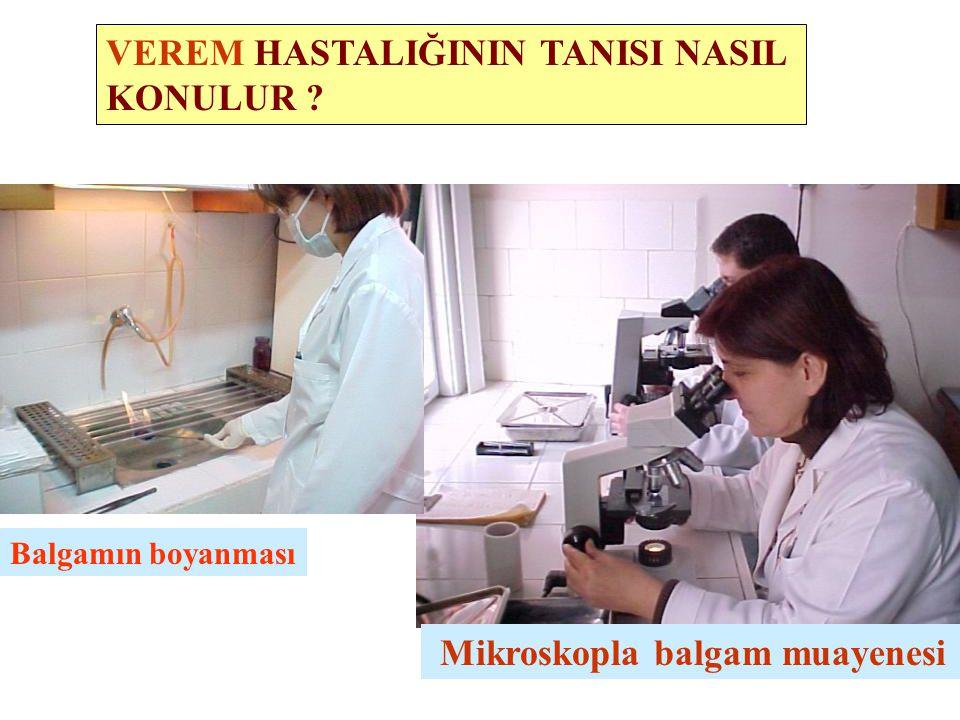 VEREM HASTALIĞININ TANISI NASIL KONULUR ? Mikroskopla balgam muayenesi Balgamın boyanması