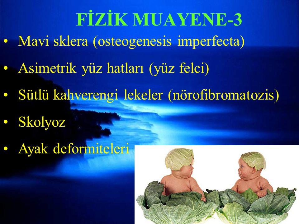 Mavi sklera (osteogenesis imperfecta) Asimetrik yüz hatları (yüz felci) Sütlü kahverengi lekeler (nörofibromatozis) Skolyoz Ayak deformiteleri FİZİK MUAYENE-3