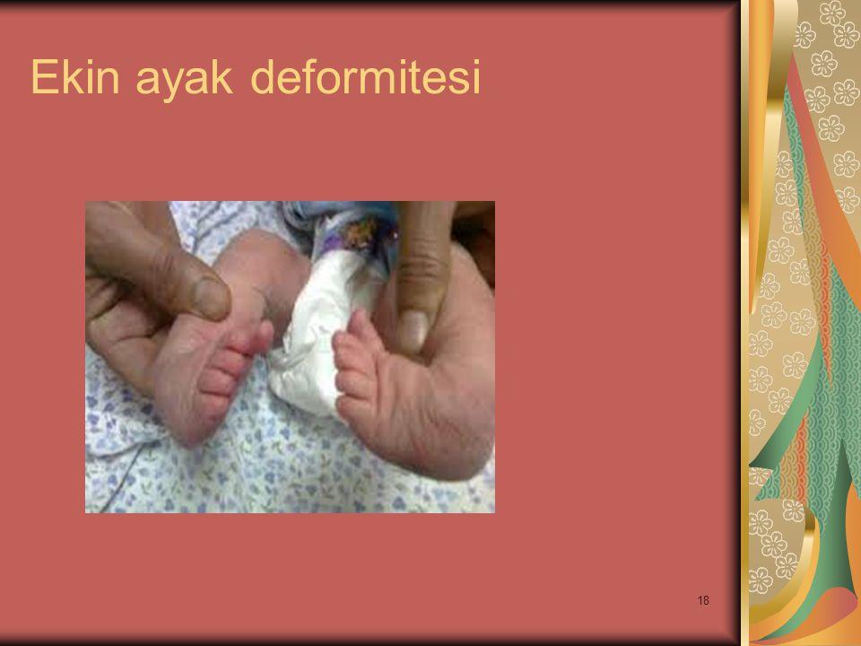 18 Ekin ayak deformitesi