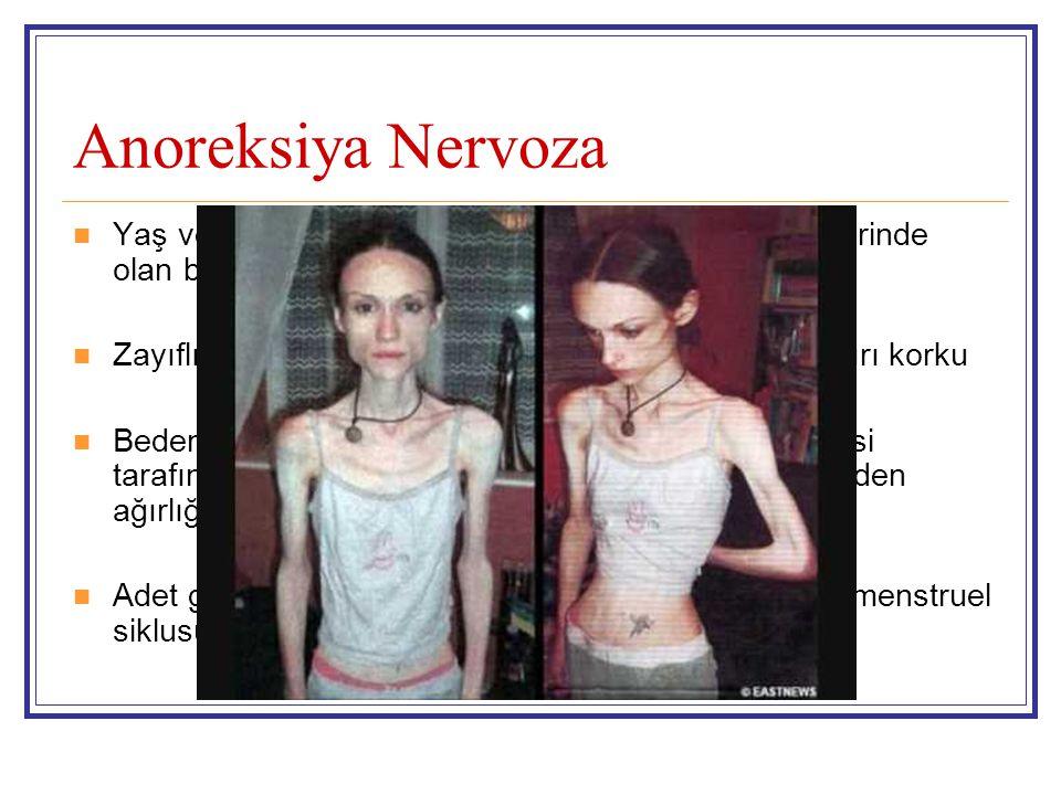 Anoreksiya Nervoza Yaş ve boya göre minimal normal ağırlıkta veya üzerinde olan beden ağırlığını korumayı reddetme Zayıflığa rağmen kilo almaktan, şiş
