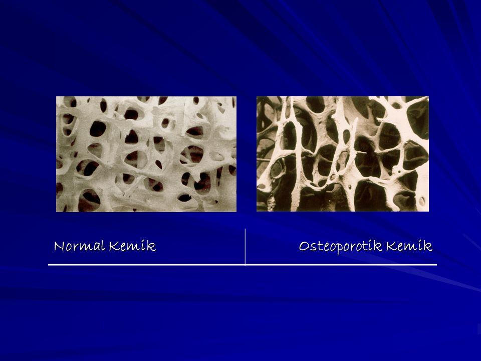 Normal Kemik Osteoporotik Kemik