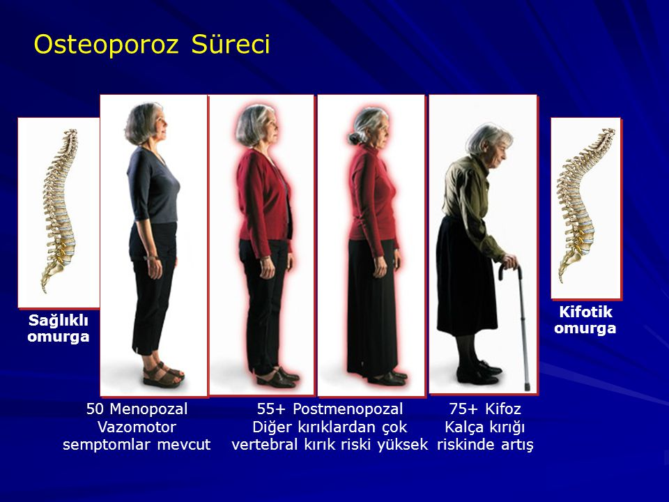 Osteoporoz Süreci 75+ Kifoz Kalça kırığı riskinde artış 55+ Postmenopozal Diğer kırıklardan çok vertebral kırık riski yüksek Sağlıklı omurga Kifotik o